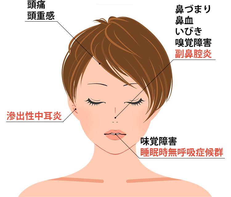 鼻中隔湾曲症の症状